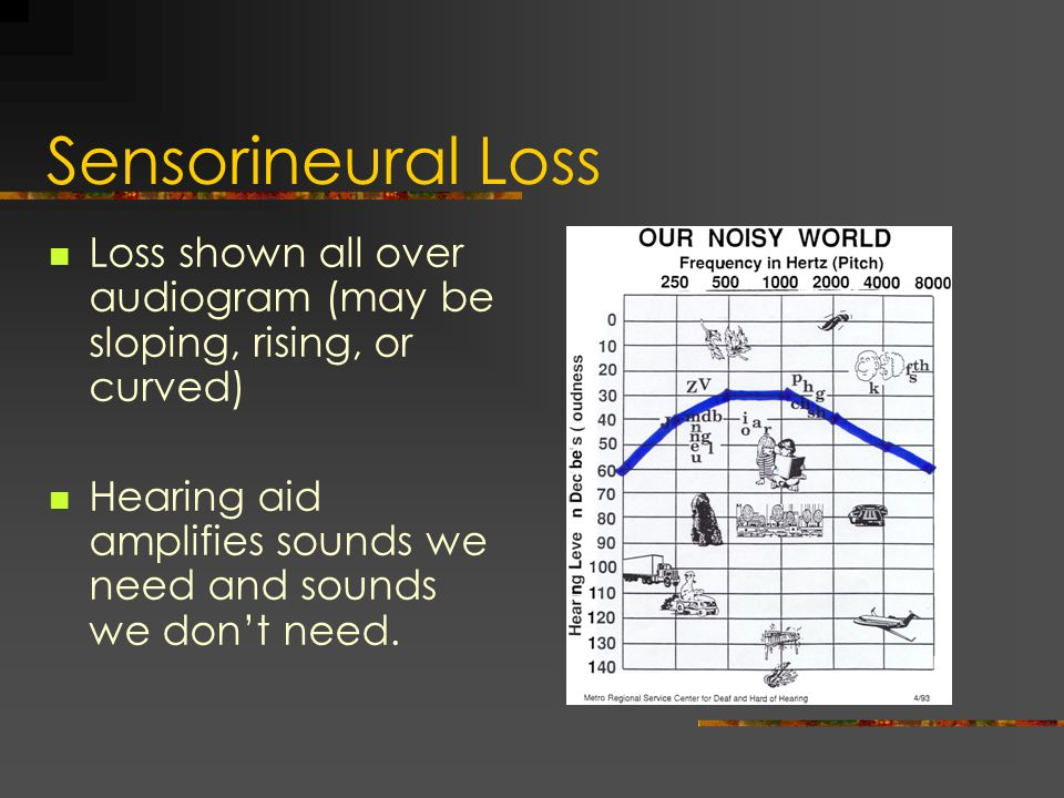 Sensorineural Loss Loss shown all over audiogram (may be sloping, rising, or curved) Hearing aid amplifies sounds we need and sounds we dont need.