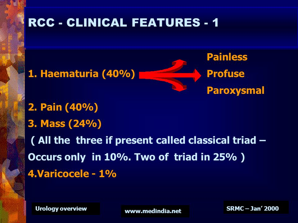 Urology overview www.medindia.net SRMC – Jan 2000 RCC - CLINICAL FEATURES - 1 Painless 1. Haematuria (40%) Profuse Paroxysmal 2. Pain (40%) 3. Mass (2