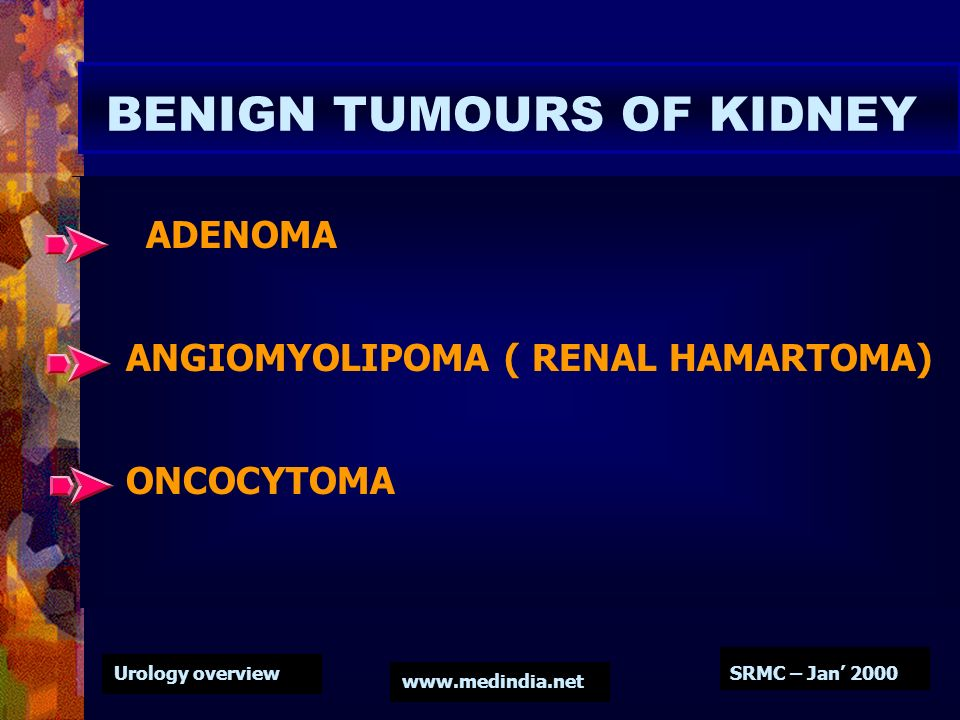 Urology overview www.medindia.net SRMC – Jan 2000 BENIGN TUMOURS OF KIDNEY ADENOMA ANGIOMYOLIPOMA ( RENAL HAMARTOMA) ONCOCYTOMA