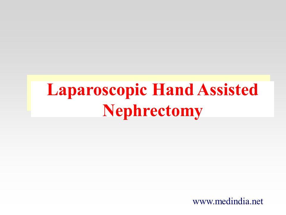 www.medindia.net Laparoscopic Hand Assisted Nephrectomy