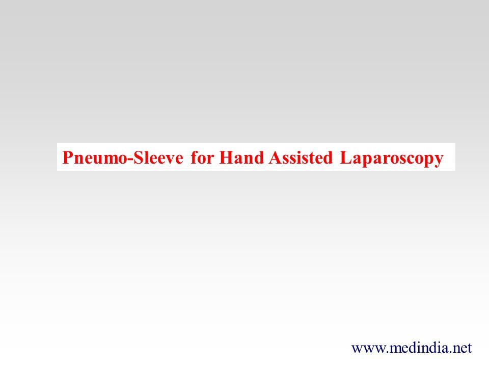 www.medindia.net Pneumo-Sleeve for Hand Assisted Laparoscopy