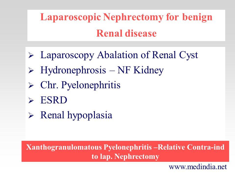 www.medindia.net Laparoscopic Nephrectomy for benign Renal disease Laparoscopy Abalation of Renal Cyst Hydronephrosis – NF Kidney Chr. Pyelonephritis