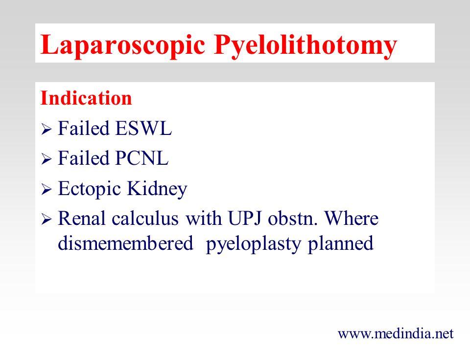 www.medindia.net Laparoscopic Pyelolithotomy Indication Failed ESWL Failed PCNL Ectopic Kidney Renal calculus with UPJ obstn. Where dismemembered pyel