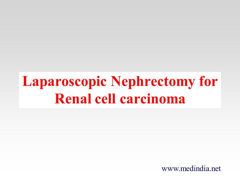 www.medindia.net Laparoscopic Nephrectomy for Renal cell carcinoma