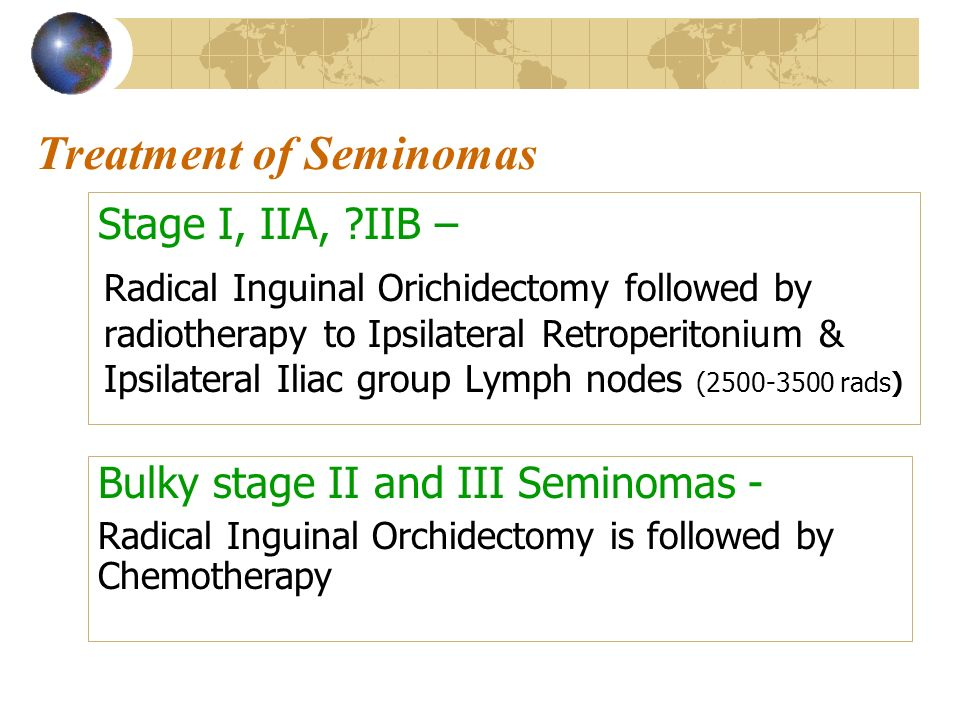 Treatment of Seminomas Stage I, IIA, ?IIB – Radical Inguinal Orichidectomy followed by radiotherapy to Ipsilateral Retroperitonium & Ipsilateral Iliac