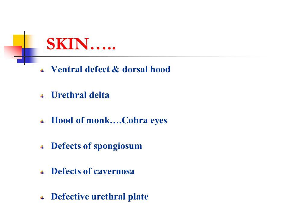 CURVATURE Skin attachments Bucks defect Urethral plate Cavernosa defects Problems of unhealthy urethra