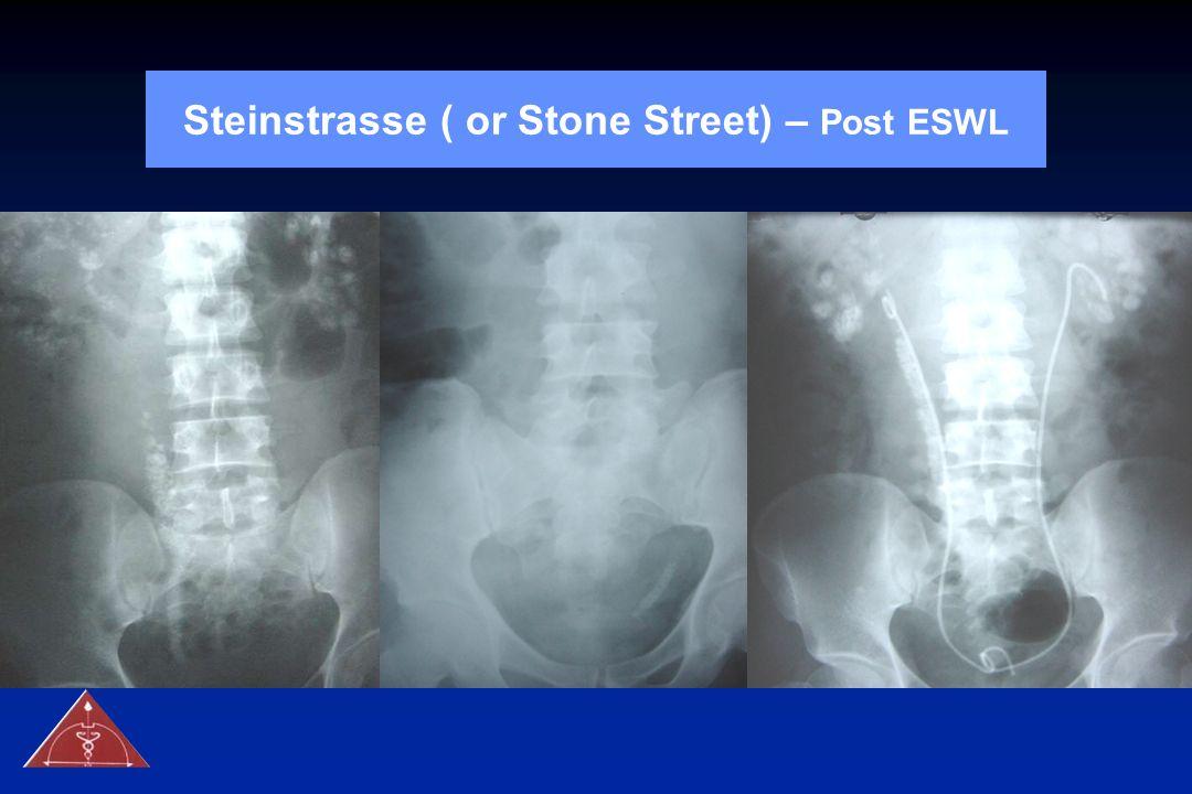 Steinstrasse ( or Stone Street) – Post ESWL