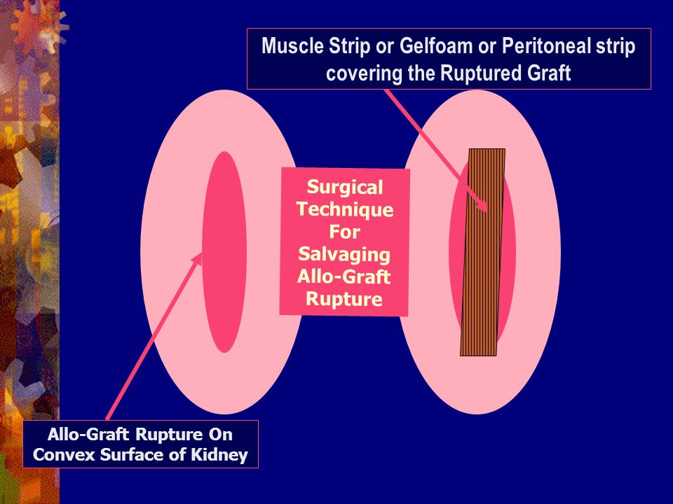 Muscle Strip or Gelfoam or Peritoneal strip covering the Ruptured Graft Allo-Graft Rupture On Convex Surface of Kidney Surgical Technique For Salvaging Allo-Graft Rupture