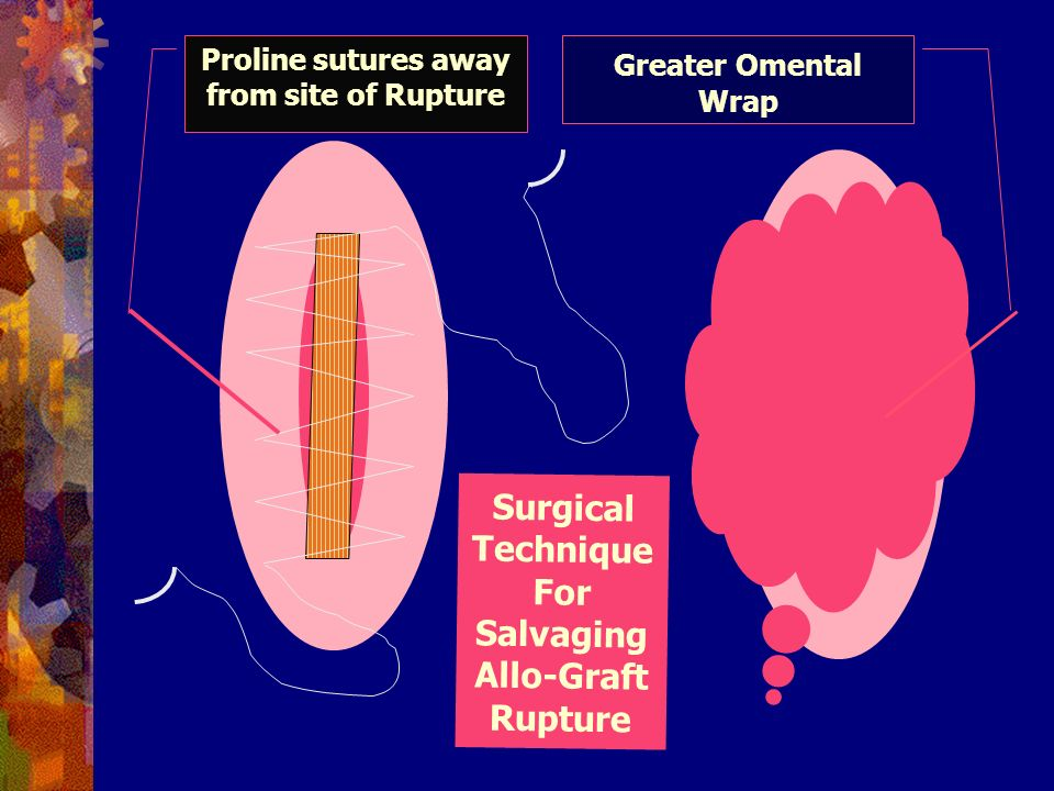 Greater Omental Wrap Proline sutures away from site of Rupture Surgical Technique For Salvaging Allo-Graft Rupture