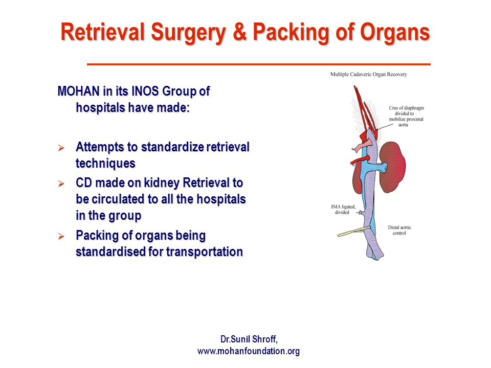 Dr.Sunil Shroff, www.mohanfoundation.org Retrieval Surgery & Packing of Organs MOHAN in its INOS Group of hospitals have made: Attempts to standardize retrieval techniques Attempts to standardize retrieval techniques CD made on kidney Retrieval to be circulated to all the hospitals in the group CD made on kidney Retrieval to be circulated to all the hospitals in the group Packing of organs being standardised for transportation Packing of organs being standardised for transportation