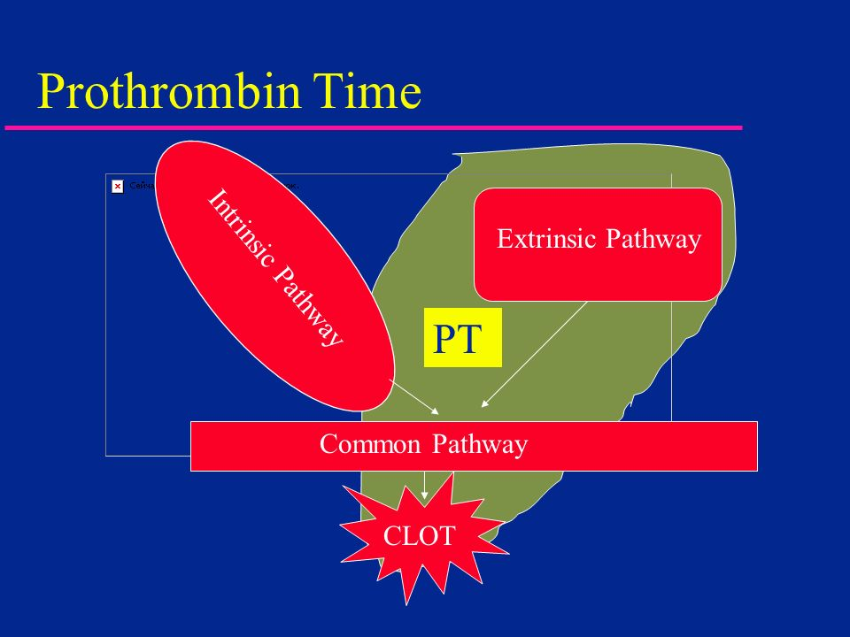 Prothrombin Time Intrinsic Pathway Extrinsic Pathway Common Pathway CLOT PT