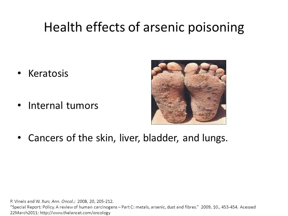 Health effects of arsenic poisoning Keratosis Internal tumors Cancers of the skin, liver, bladder, and lungs. P. Vineis and W. Xun; Ann. Oncol.; 2008,