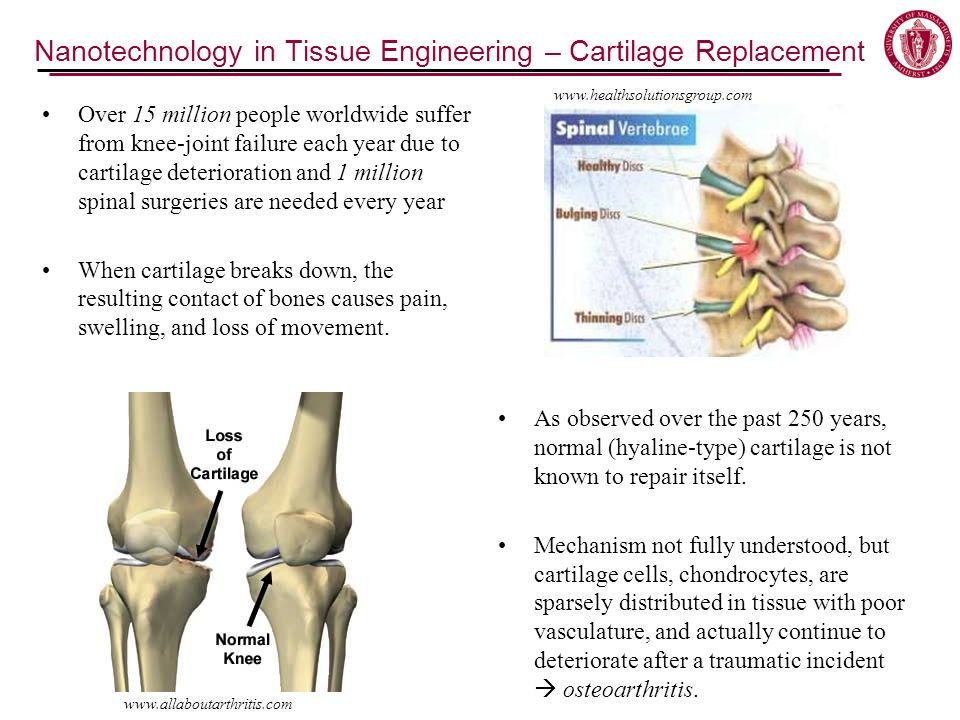 Nanotechnology in Tissue Engineering – Cartilage Replacement Over 15 million people worldwide suffer from knee-joint failure each year due to cartilage deterioration and 1 million spinal surgeries are needed every year When cartilage breaks down, the resulting contact of bones causes pain, swelling, and loss of movement.
