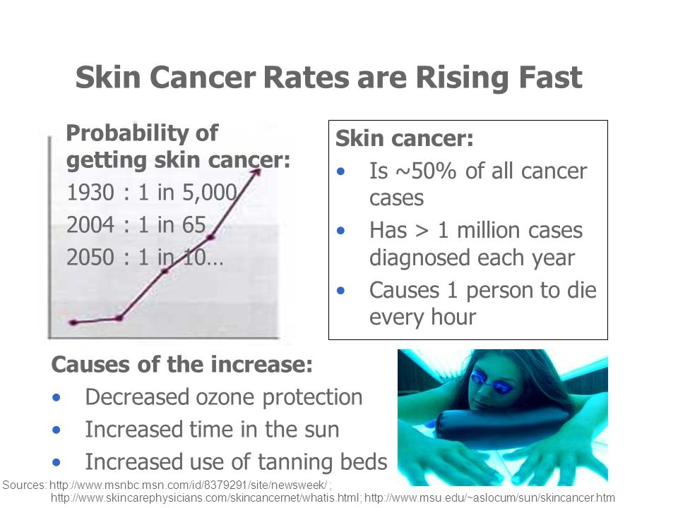 Skin Cancer Rates are Rising Fast Skin cancer: Is ~50% of all cancer cases Has > 1 million cases diagnosed each year Causes 1 person to die every hour