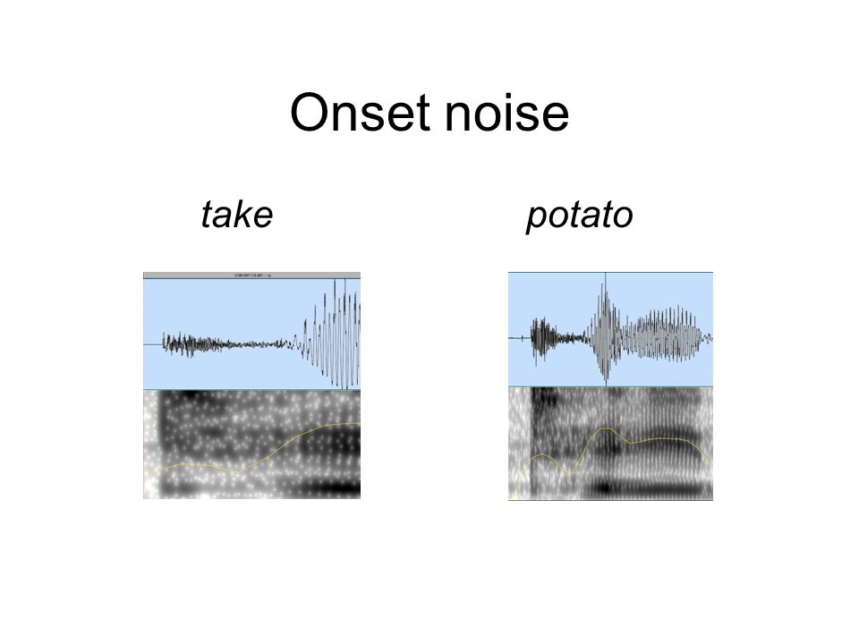 Typical onset release noise Transient, frication, aspiration