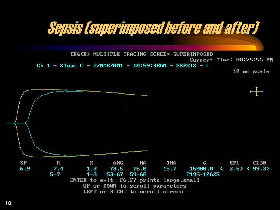 18 Sepsis (superimposed before and after)
