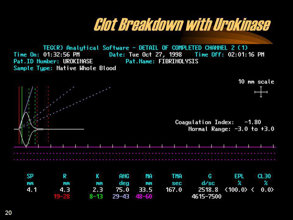 20 Clot Breakdown with Urokinase