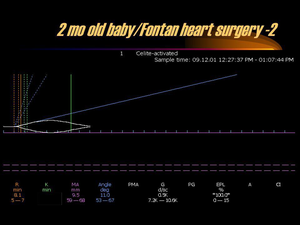 37 2 mo old baby/Fontan heart surgery -2