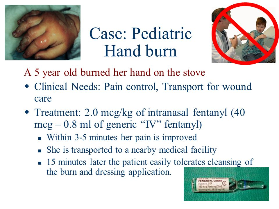 Case: Pediatric Hand burn A 5 year old burned her hand on the stove Clinical Needs: Pain control, Transport for wound care Treatment: 2.0 mcg/kg of in