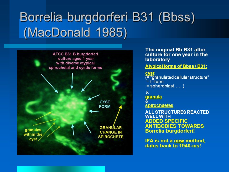 Borrelia burgdorferi B31 (Bbss) (MacDonald 1985) The original Bb B31 after culture for one year in the laboratory Atypical forms of Bbss / B31: cyst (= granulated cellular structure = L-form = spheroblast ….