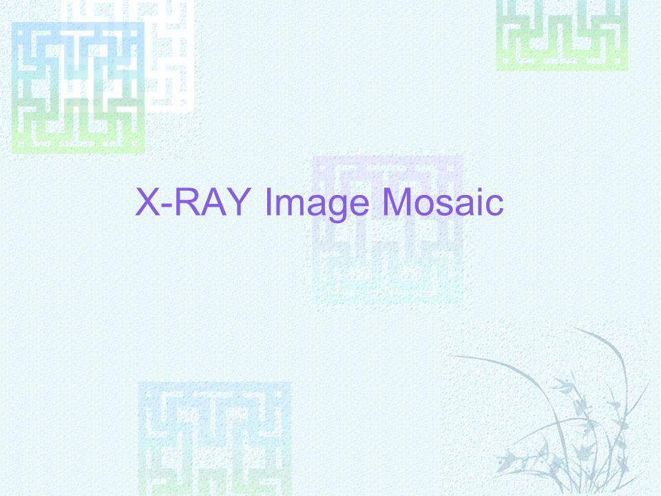 X-RAY Image Mosaic