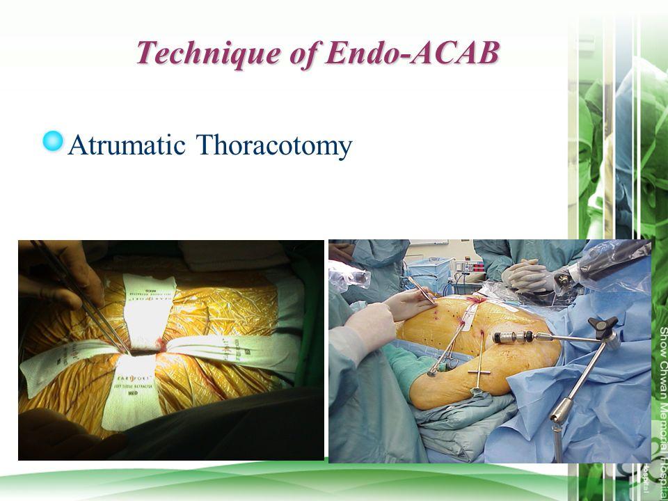Technique of Endo-ACAB Atrumatic Thoracotomy
