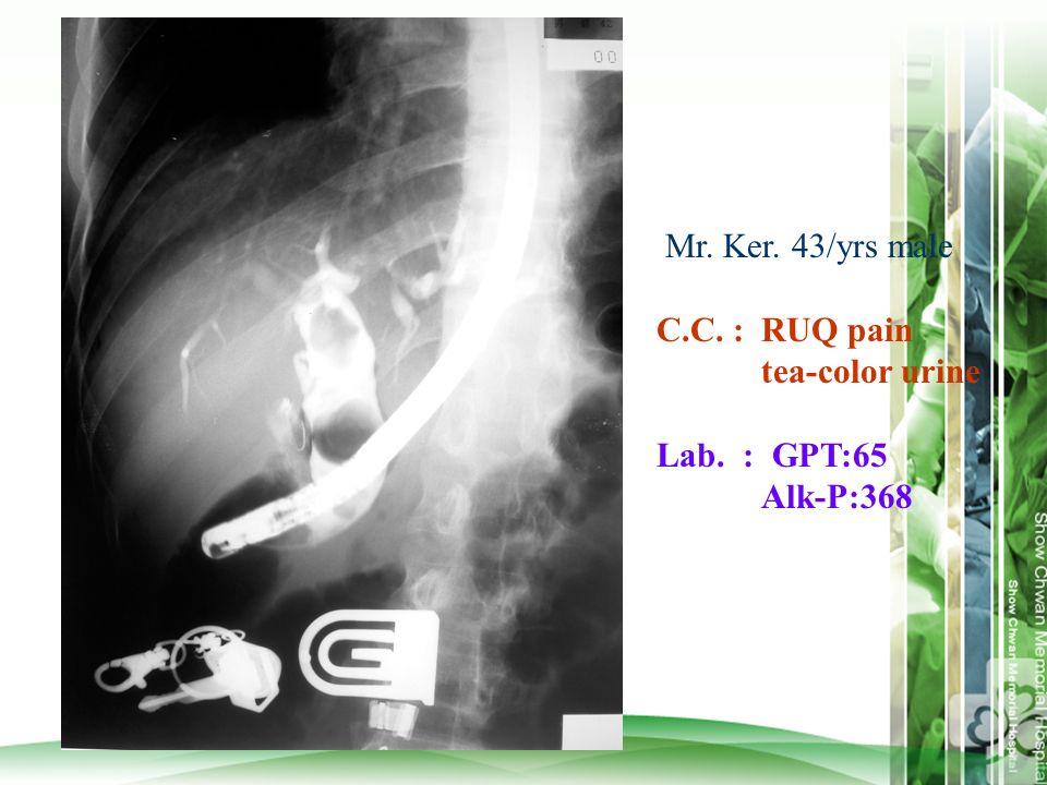 Mr. Ker. 43/yrs male C.C. :RUQ pain tea-color urine Lab. : GPT:65 Alk-P:368