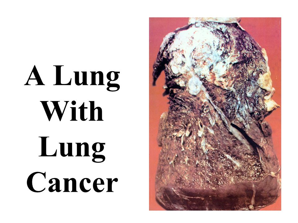 A Lung With Lung Cancer