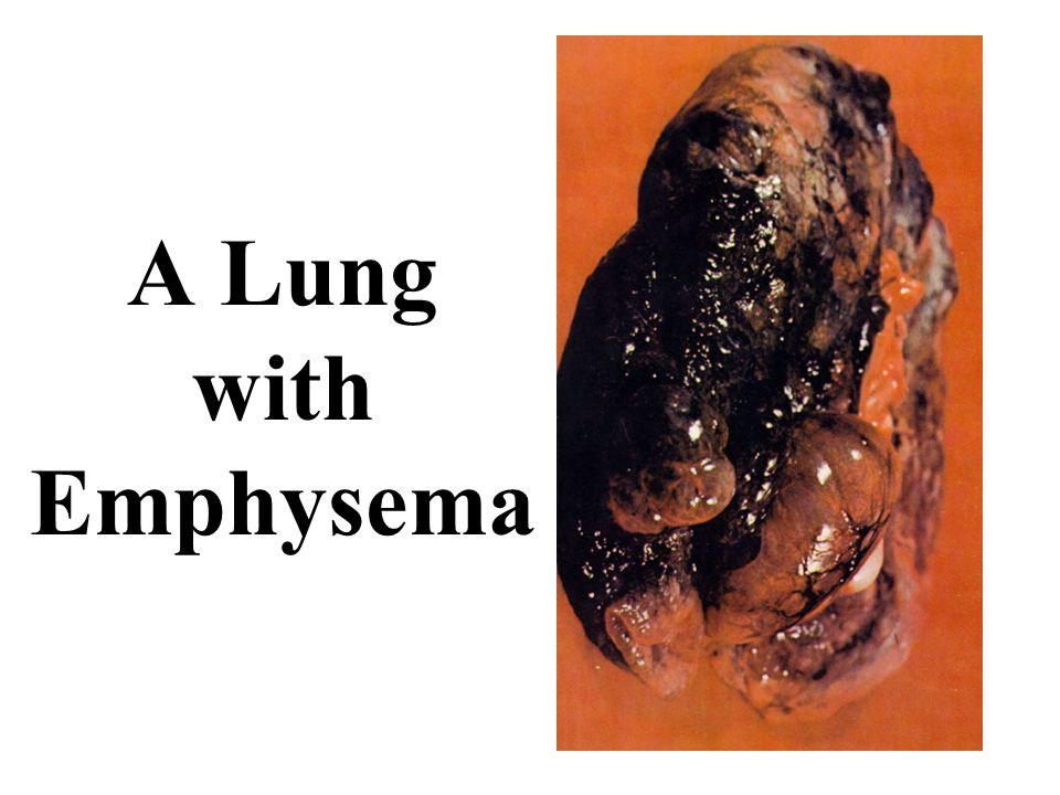 A Lung with Emphysema