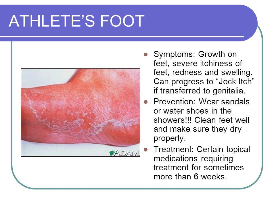 ATHLETES FOOT Symptoms: Growth on feet, severe itchiness of feet, redness and swelling.