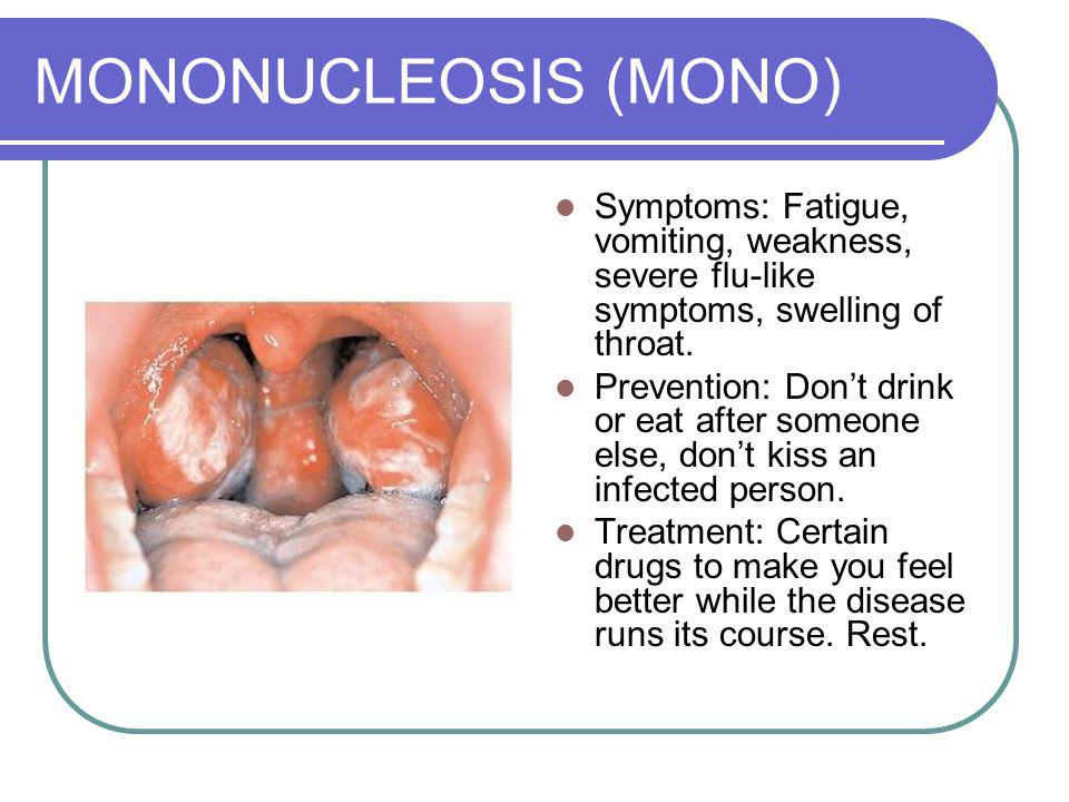 MONONUCLEOSIS (MONO) Symptoms: Fatigue, vomiting, weakness, severe flu-like symptoms, swelling of throat.