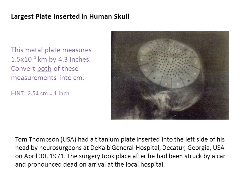 Tom Thompson (USA) had a titanium plate inserted into the left side of his head by neurosurgeons at DeKalb General Hospital, Decatur, Georgia, USA on April 30, 1971.