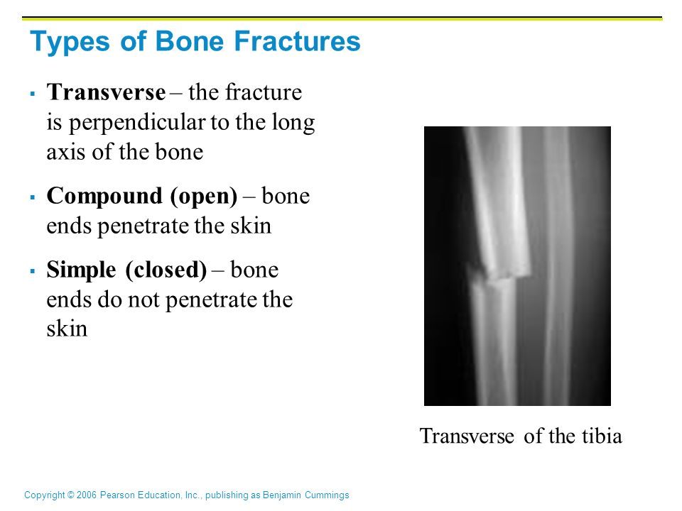 Copyright © 2006 Pearson Education, Inc., publishing as Benjamin Cummings Common Types of Fractures Comminuted – bone fragments into three or more pieces; common in the elderly Spiral – ragged break when bone is excessively twisted; common sports injury Depressed – broken bone portion pressed inward; typical skull fracture Spiral