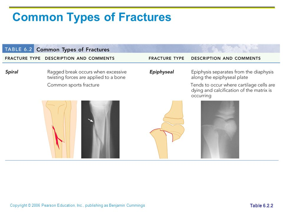 Copyright © 2006 Pearson Education, Inc., publishing as Benjamin Cummings Common Types of Fractures Table 6.2.3
