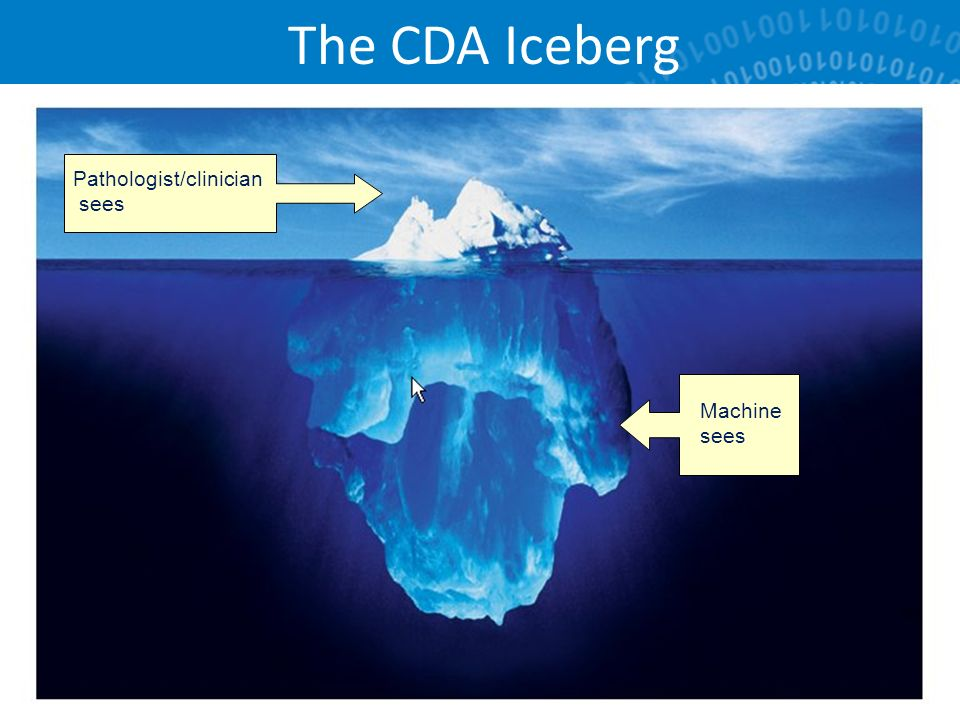 The CDA Iceberg 35 Pathologist/clinician sees Machine sees