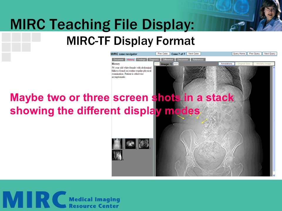 MIRC Teaching File Display: MIRC-TF Display Format Maybe two or three screen shots in a stack showing the different display modes