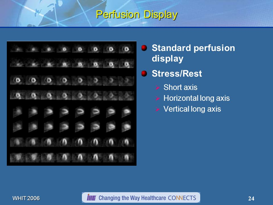 WHIT 2006 24 Perfusion Display Standard perfusion display Stress/Rest Short axis Horizontal long axis Vertical long axis