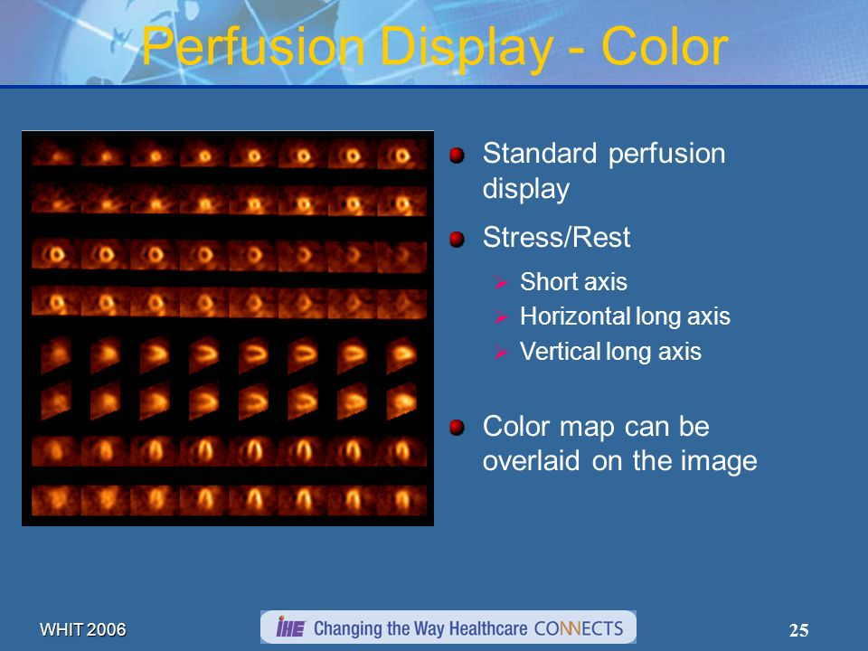 WHIT 2006 25 Perfusion Display - Color Standard perfusion display Stress/Rest Short axis Horizontal long axis Vertical long axis Color map can be over