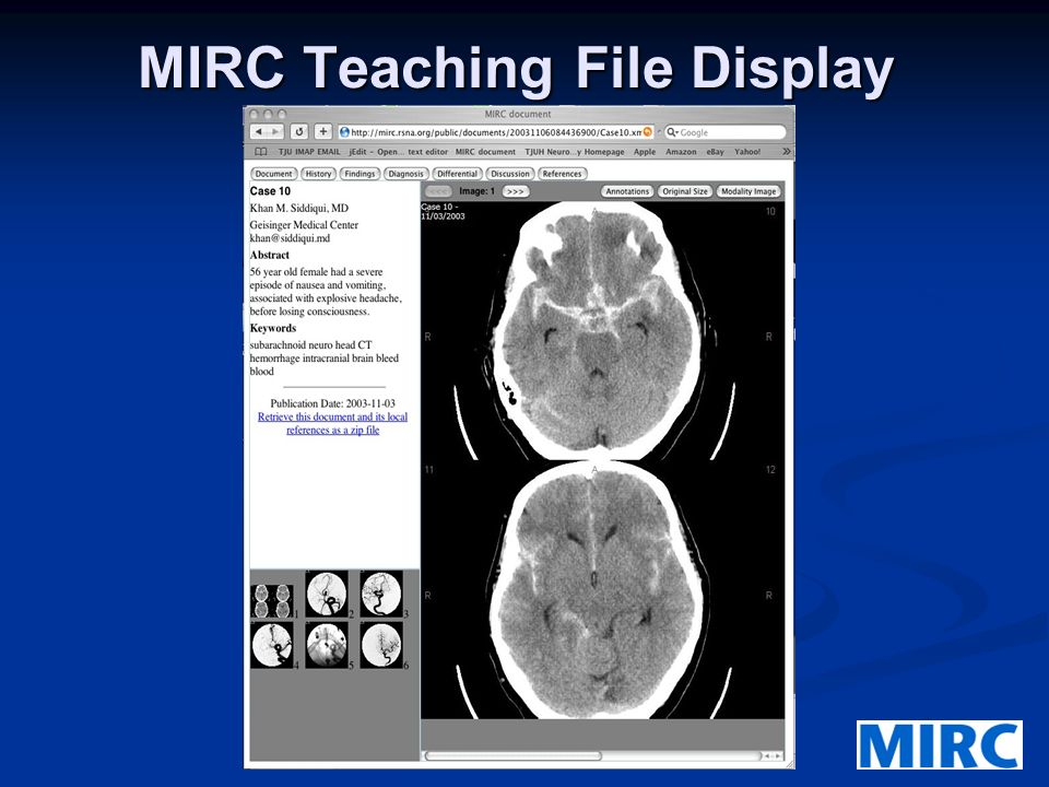MIRC Teaching File Display