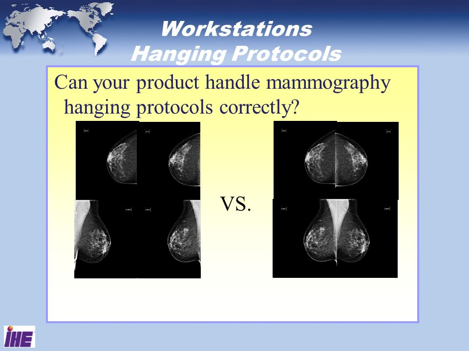 Workstations Hanging Protocols Can your product handle mammography hanging protocols correctly? VS.