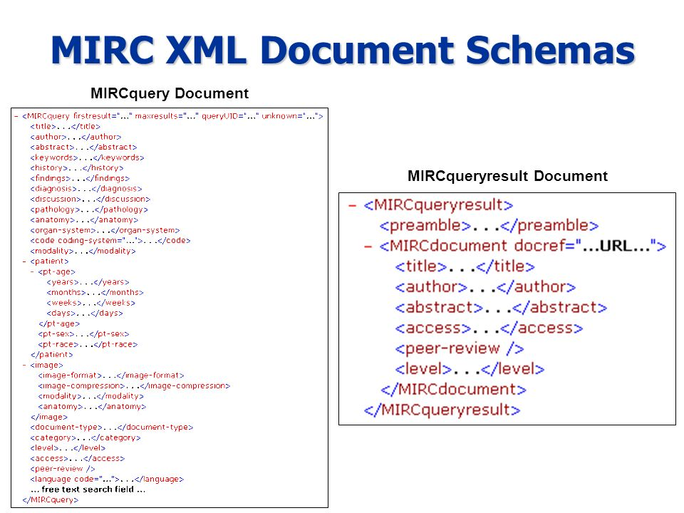 MIRC XML Document Schemas MIRCquery Document MIRCqueryresult Document