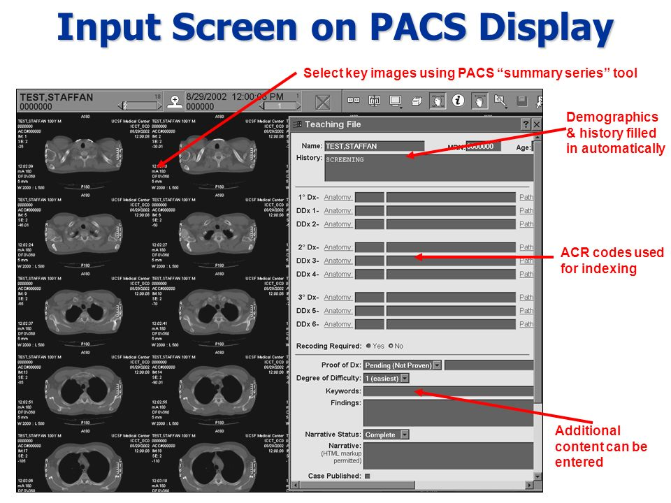 Input Screen on PACS Display Demographics & history filled in automatically ACR codes used for indexing Additional content can be entered Select key images using PACS summary series tool