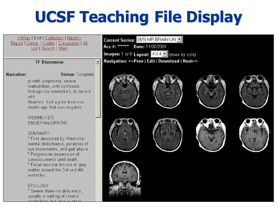 UCSF Teaching File Display