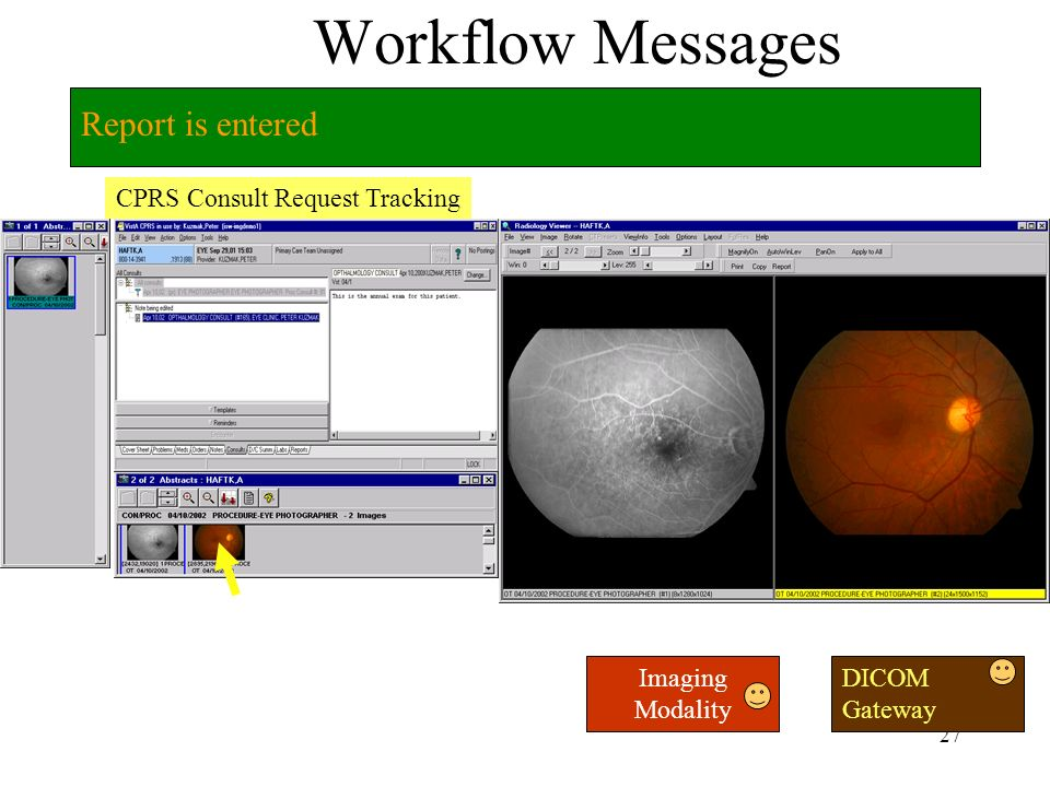 26 Workflow Messages CPRS Consult Request Tracking Images diagnosed on VistA Imaging Modality DICOM Gateway