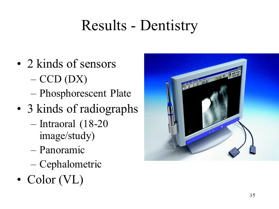 34 Results - Dentistry 2 kinds of sensors –CCD (DX) –Phosphorescent Plate 3 kinds of radiographs –Intraoral (18-20 image/study) –Panoramic –Cephalometric Color (VL) Various sized CCD sensors