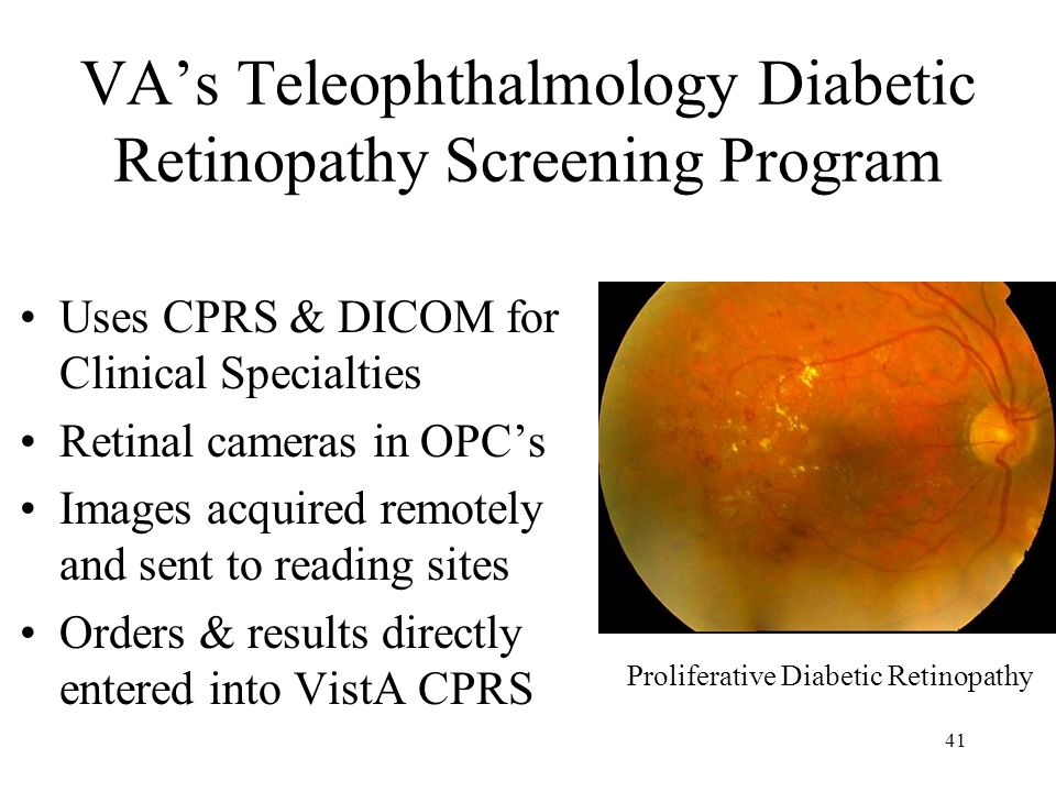 40 Diabetic Retinopathy Screening Diabetes mellitus causes degeneration of retina Leading cause of blindness in U.