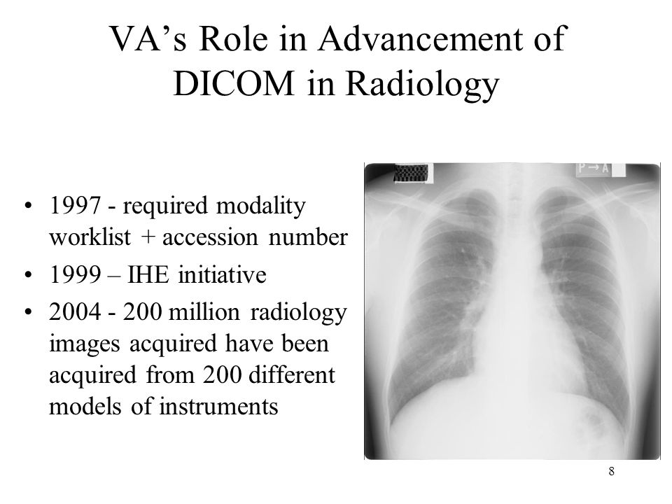 7 VA IHE Success Story All VA DICOM image acquisition uses IHE Radiology Transactions to interface modalities to PACS: –#5 - Modality Worklist Provided - download patient and study –#8 - Modality Images Stored - send images to the PACS.