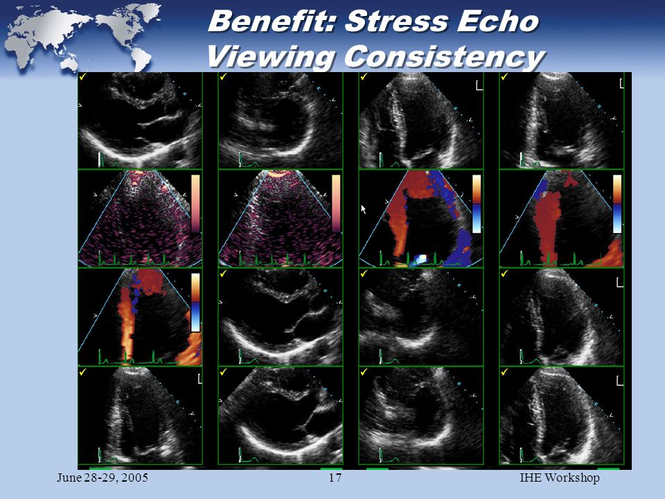 June 28-29, 2005IHE Workshop17 Benefit: Stress Echo Viewing Consistency