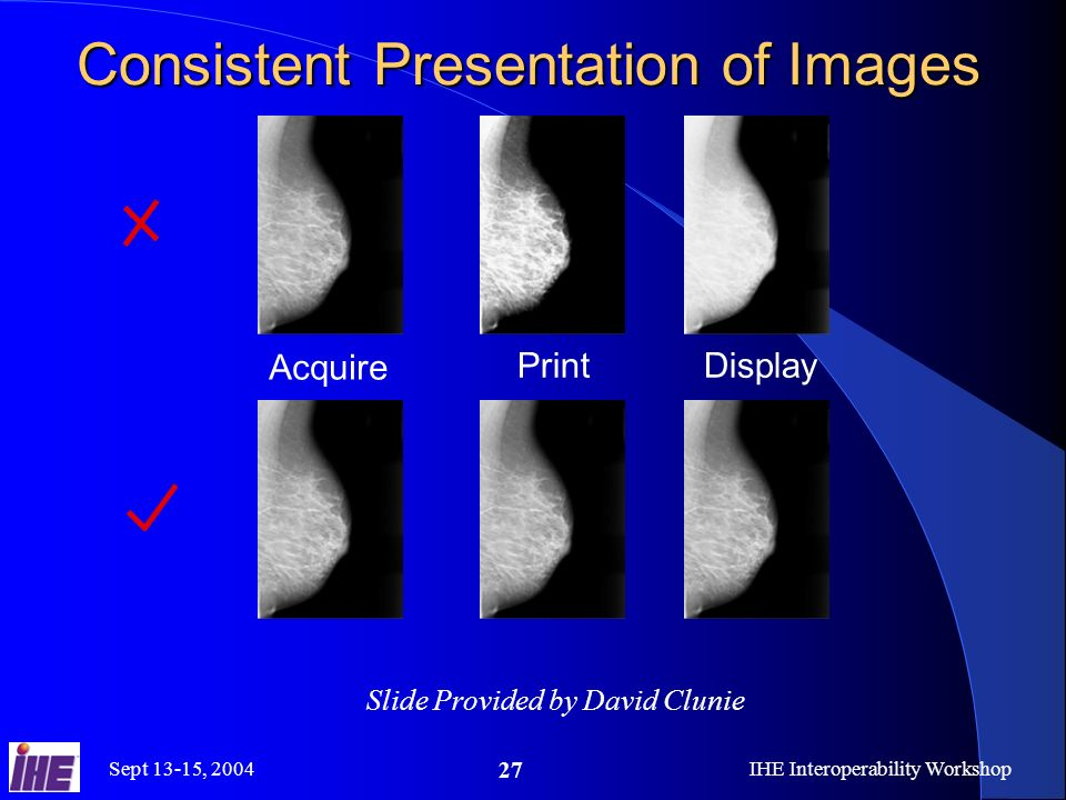 Sept 13-15, 2004IHE Interoperability Workshop 27 Acquire DisplayPrint Consistent Presentation of Images Slide Provided by David Clunie