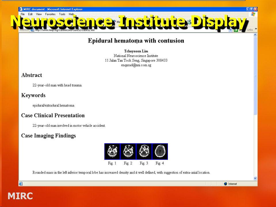 MIRC Neuroscience Institute Display